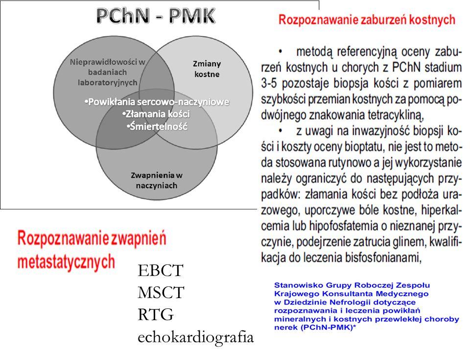 EBCT MSCT RTG echokardiografia