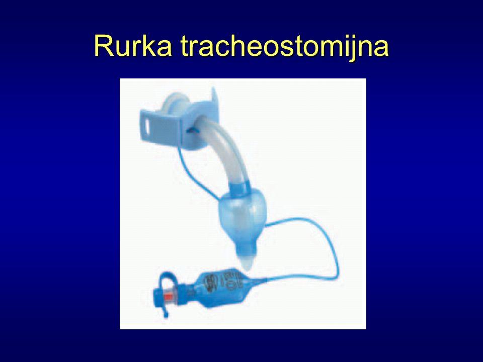 Rurka tracheostomijna
