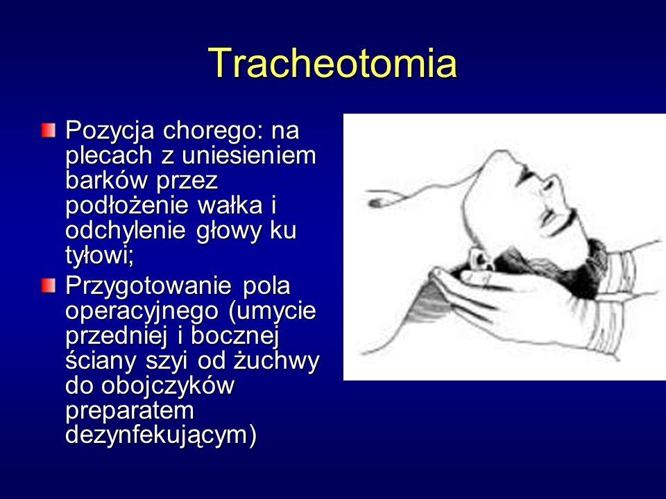 Tracheotomia Pozycja chorego: na plecach z uniesieniem barków przez podłożenie wałka i odchylenie głowy ku tyłowi;