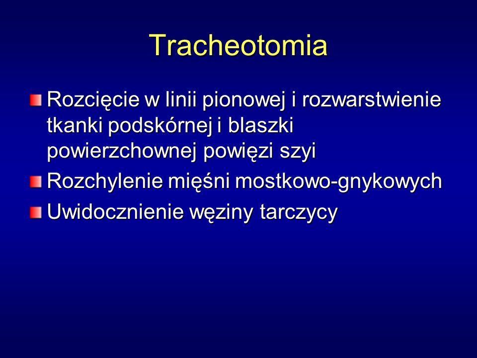 Tracheotomia Rozcięcie w linii pionowej i rozwarstwienie tkanki podskórnej i blaszki powierzchownej powięzi szyi.