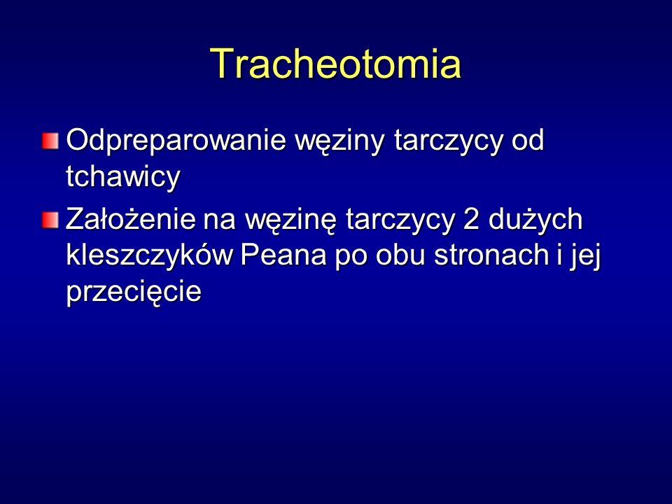 Tracheotomia Odpreparowanie węziny tarczycy od tchawicy