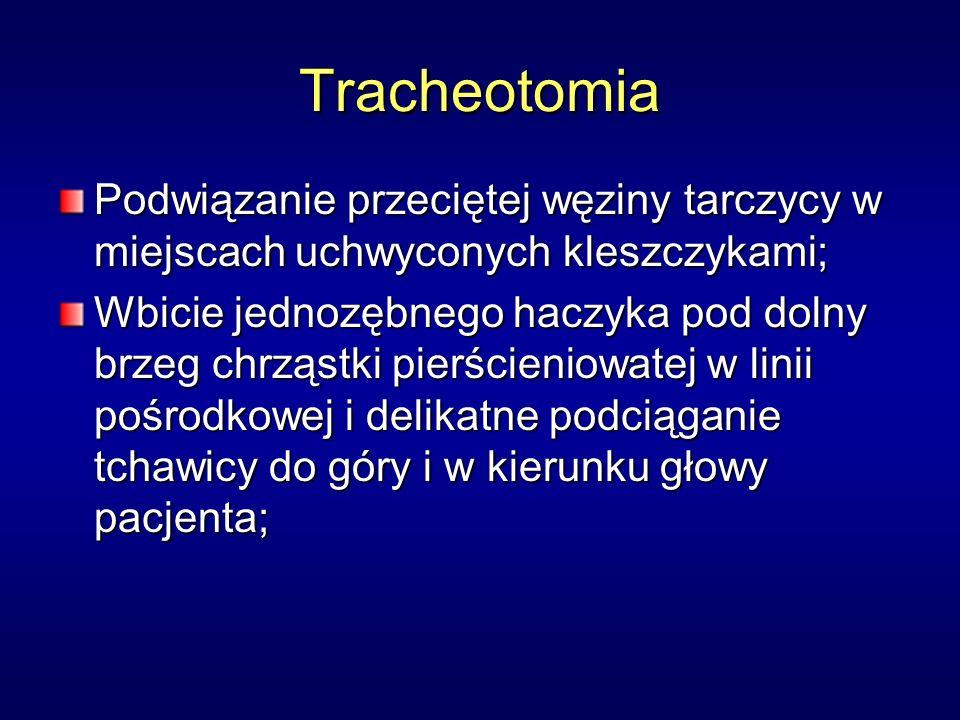 Tracheotomia Podwiązanie przeciętej węziny tarczycy w miejscach uchwyconych kleszczykami;