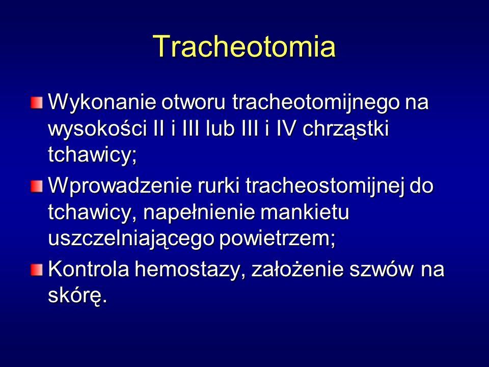 Tracheotomia Wykonanie otworu tracheotomijnego na wysokości II i III lub III i IV chrząstki tchawicy;