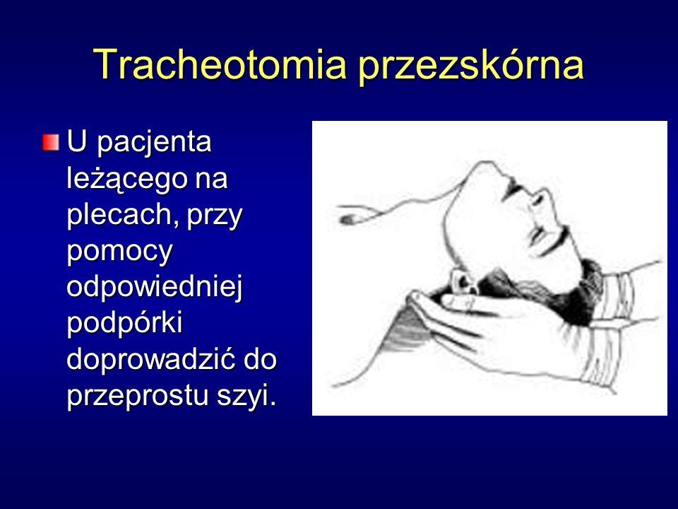 Tracheotomia przezskórna