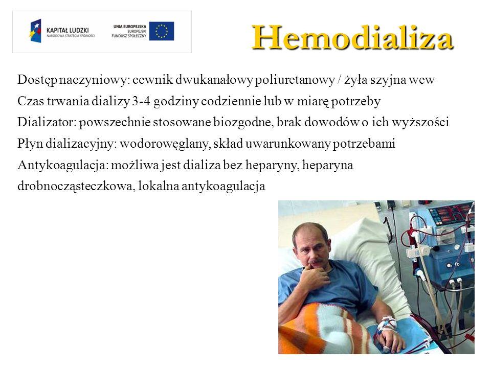 Hemodializa Dostęp naczyniowy: cewnik dwukanałowy poliuretanowy / żyła szyjna wew. Czas trwania dializy 3-4 godziny codziennie lub w miarę potrzeby.