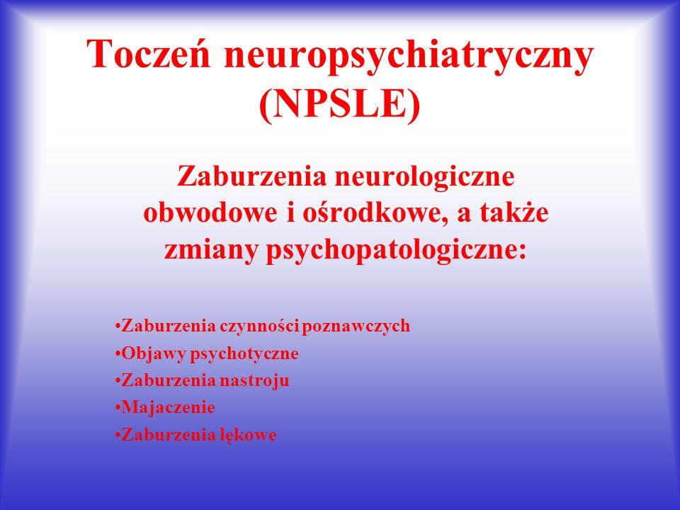 Toczeń neuropsychiatryczny (NPSLE)