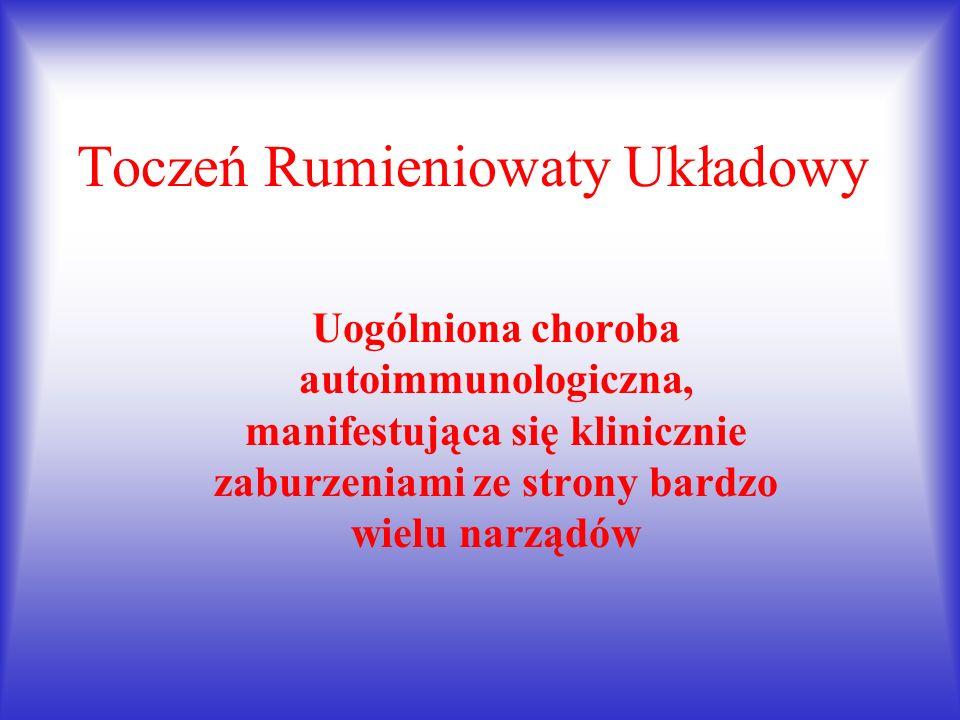 Toczeń Rumieniowaty Układowy
