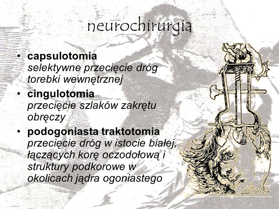 neurochirurgia capsulotomia selektywne przecięcie dróg torebki wewnętrznej. cingulotomia przecięcie szlaków zakrętu obręczy.