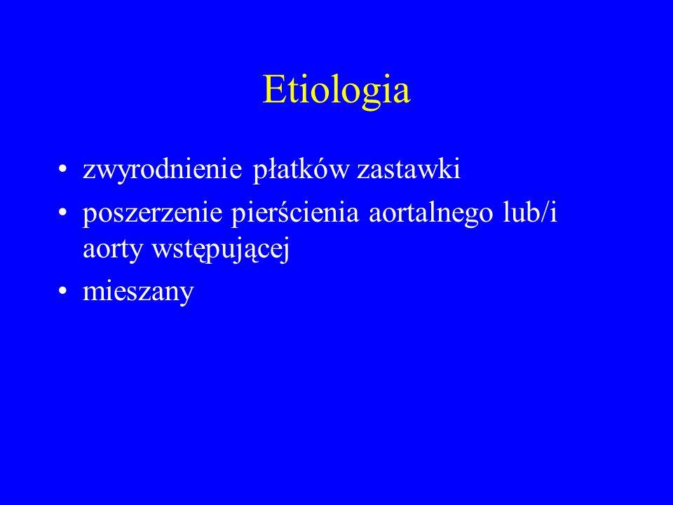 Etiologia zwyrodnienie płatków zastawki
