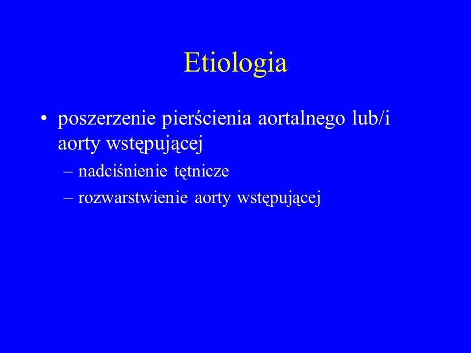 Etiologia poszerzenie pierścienia aortalnego lub/i aorty wstępującej