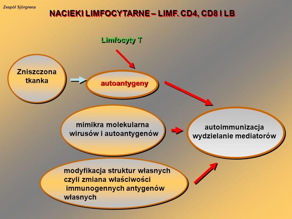 NACIEKI LIMFOCYTARNE – LIMF. CD4, CD8 I LB