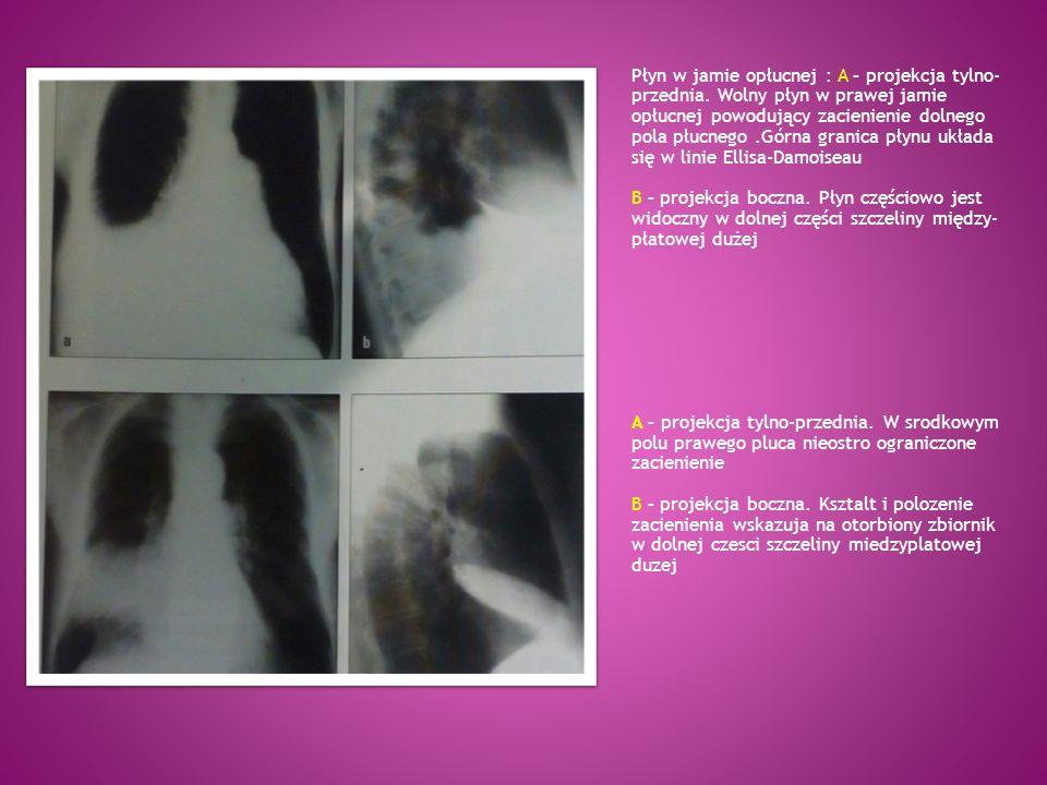 Płyn w jamie opłucnej : A – projekcja tylno-przednia