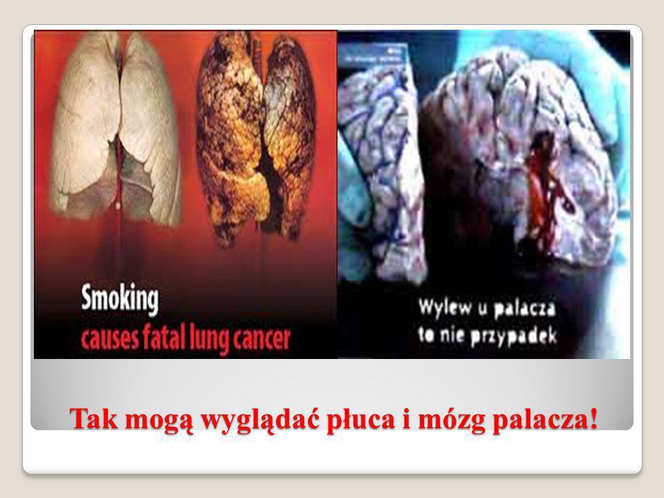 Tak mogą wyglądać płuca i mózg palacza!
