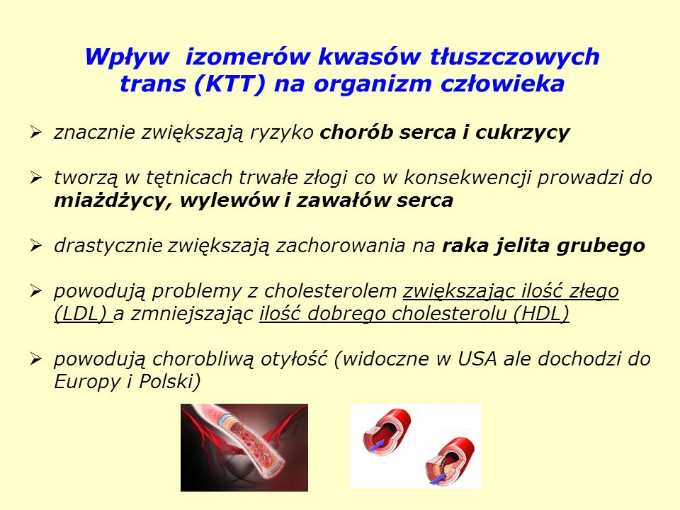 Wpływ izomerów kwasów tłuszczowych trans (KTT) na organizm człowieka