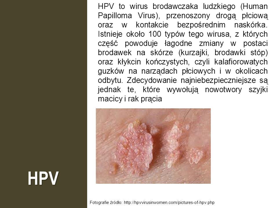 HPV to wirus brodawczaka ludzkiego (Human Papilloma Virus), przenoszony drogą płciową oraz w kontakcie bezpośrednim naskórka. Istnieje około 100 typów tego wirusa, z których część powoduje łagodne zmiany w postaci brodawek na skórze (kurzajki, brodawki stóp) oraz kłykcin kończystych, czyli kalafiorowatych guzków na narządach płciowych i w okolicach odbytu. Zdecydowanie najniebezpieczniejsze są jednak te, które wywołują nowotwory szyjki macicy i rak prącia