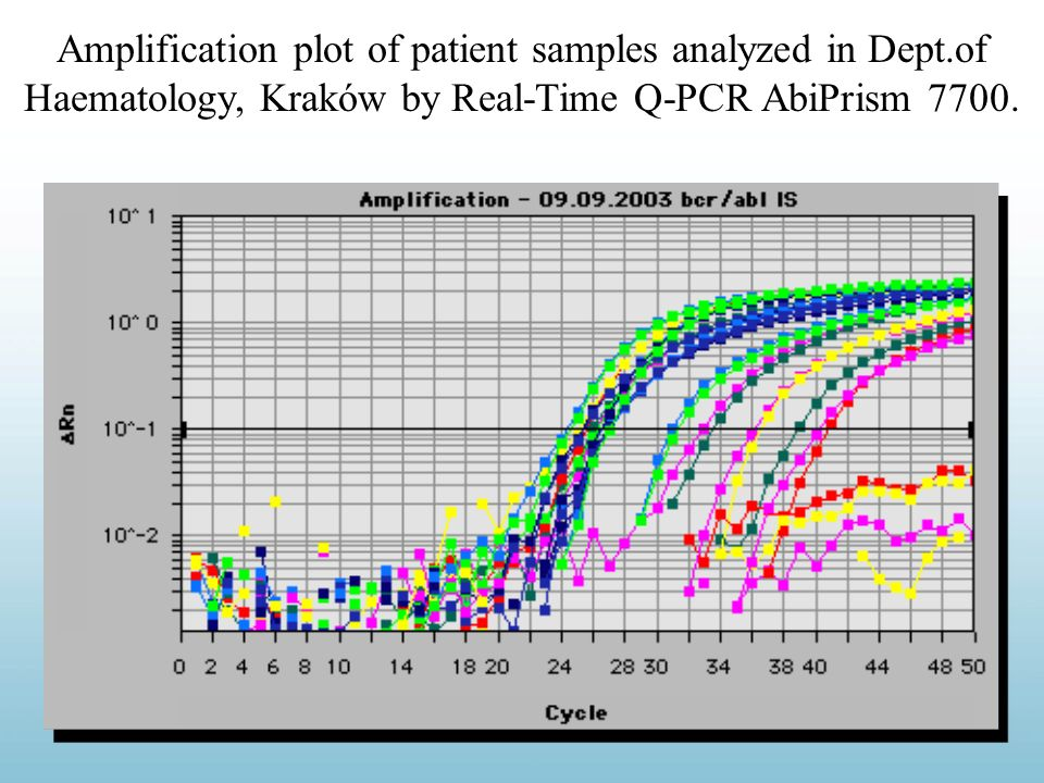 Amplification plot of patient samples analyzed in Dept