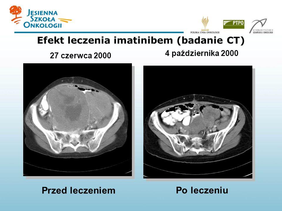 Efekt leczenia imatinibem (badanie CT)