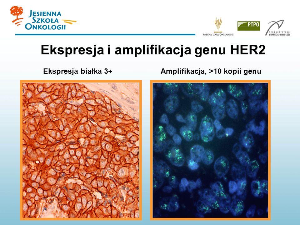 Ekspresja i amplifikacja genu HER2