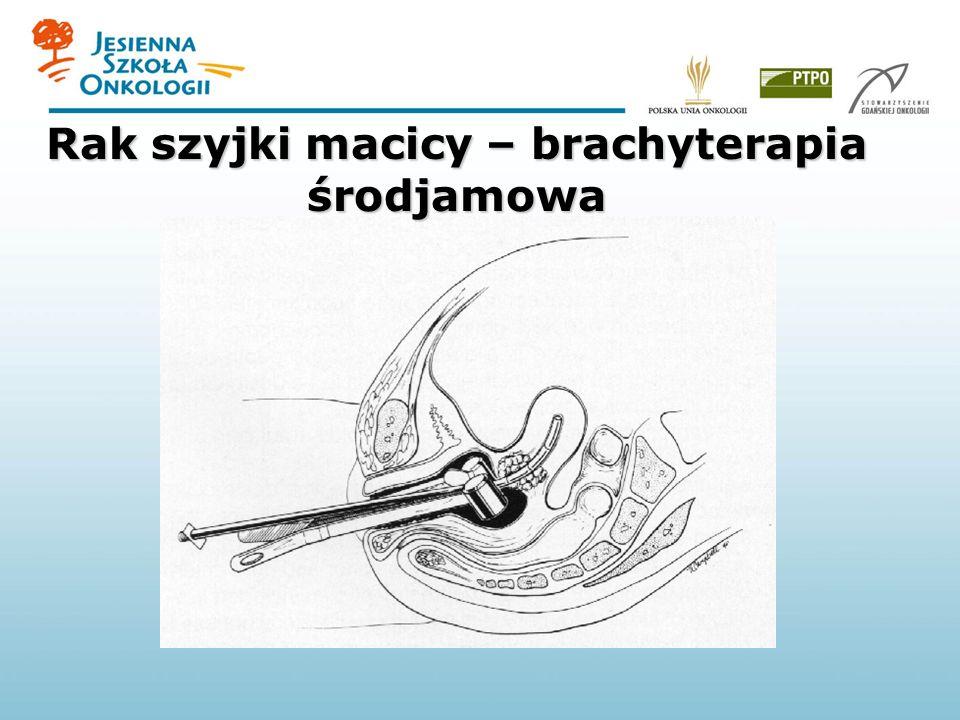 Rak szyjki macicy – brachyterapia środjamowa