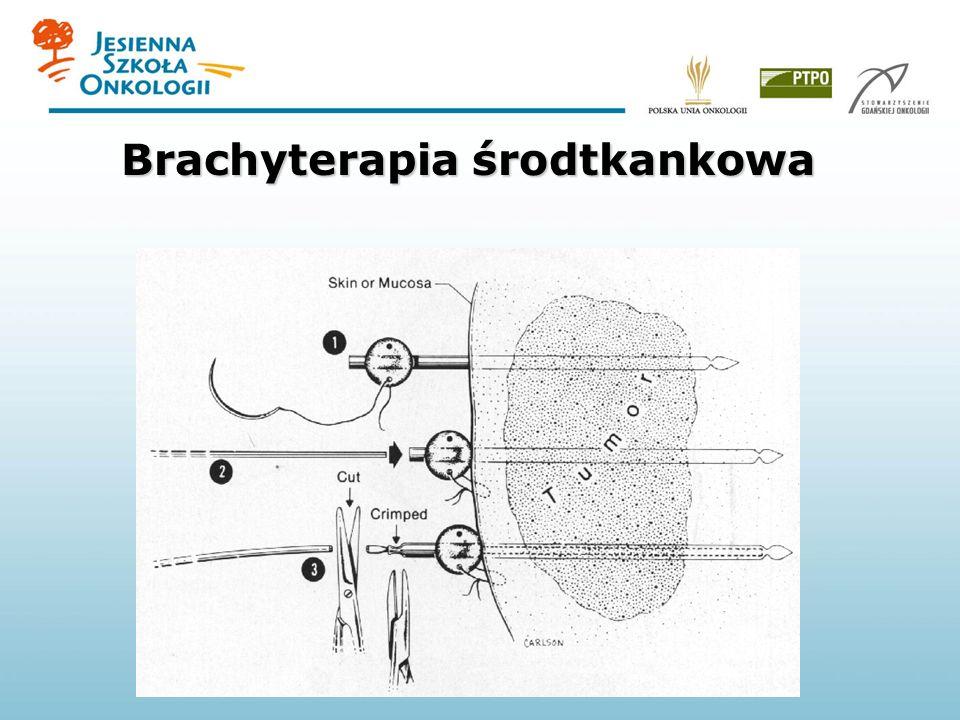 Brachyterapia środtkankowa