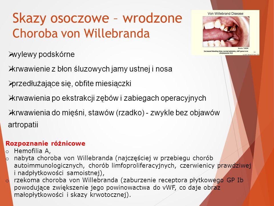 Skazy osoczowe – wrodzone Choroba von Willebranda
