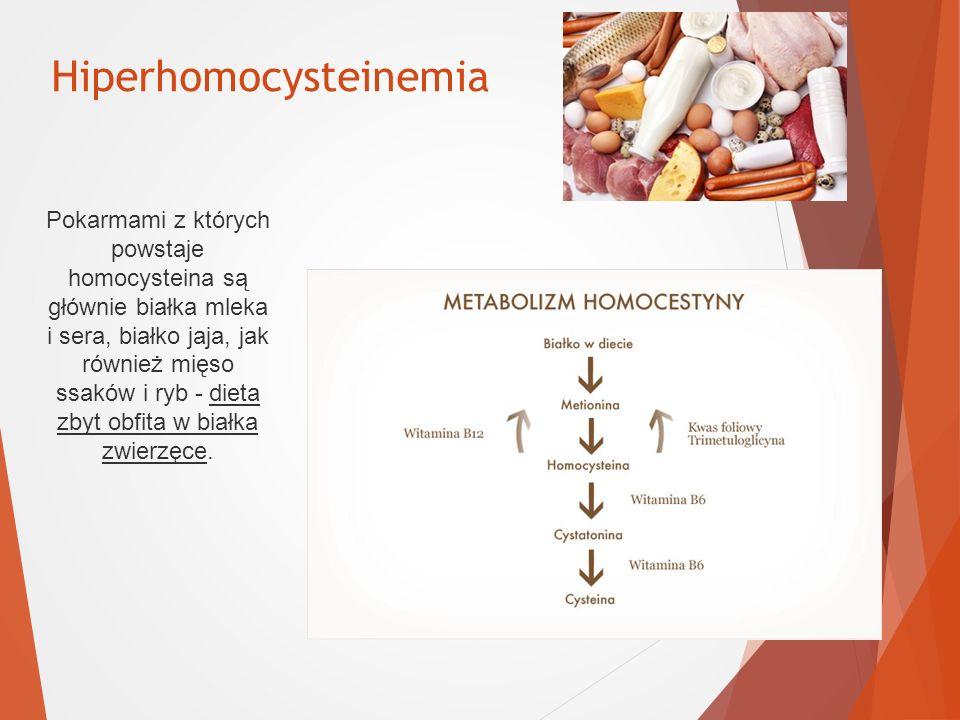 Hiperhomocysteinemia