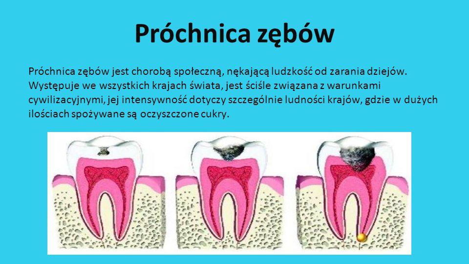 Próchnica zębów