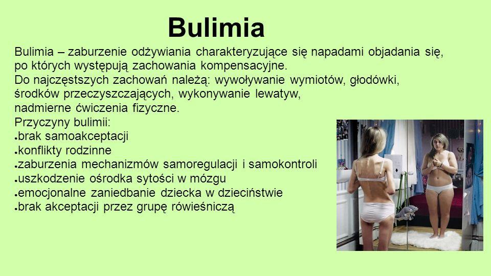 Bulimia Bulimia – zaburzenie odżywiania charakteryzujące się napadami objadania się, po których występują zachowania kompensacyjne.