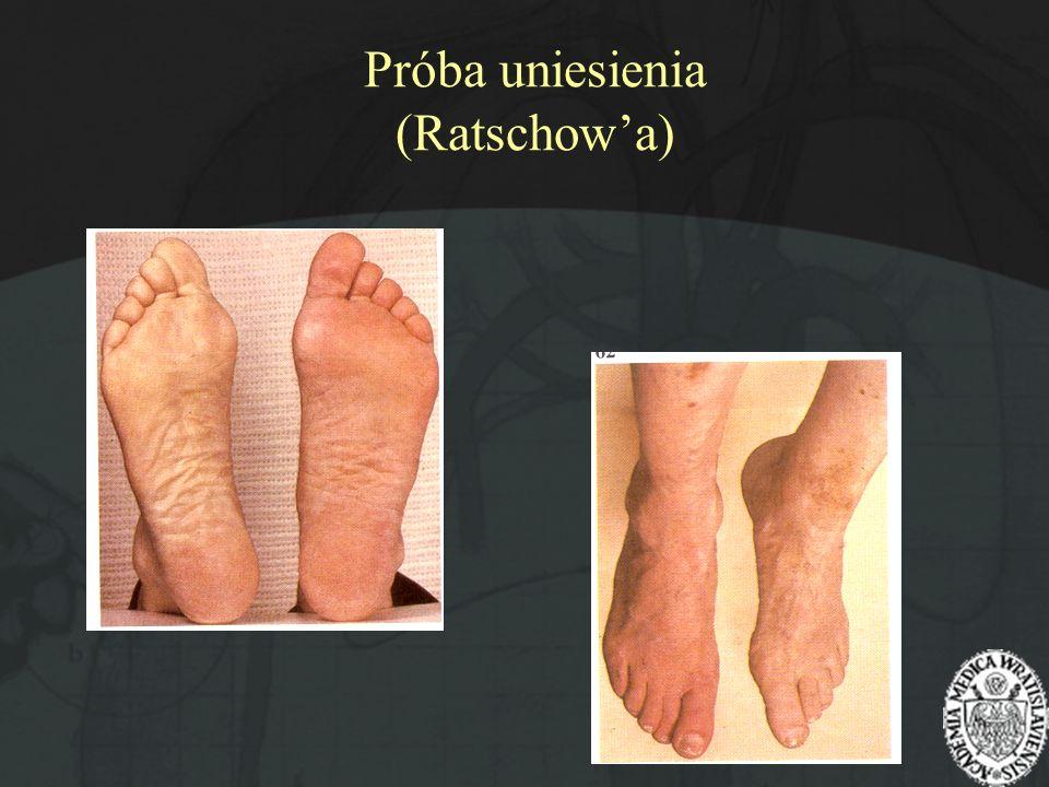 Próba uniesienia (Ratschow'a)