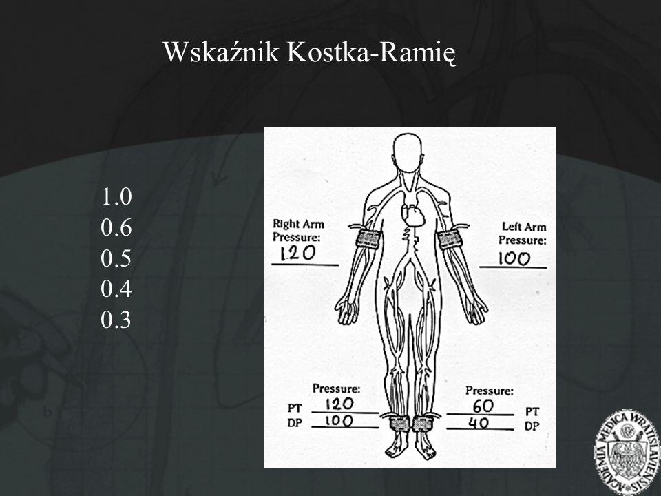Wskaźnik Kostka-Ramię