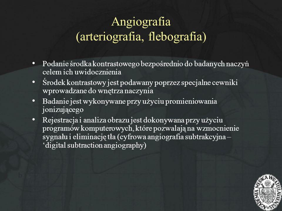 Angiografia (arteriografia, flebografia)