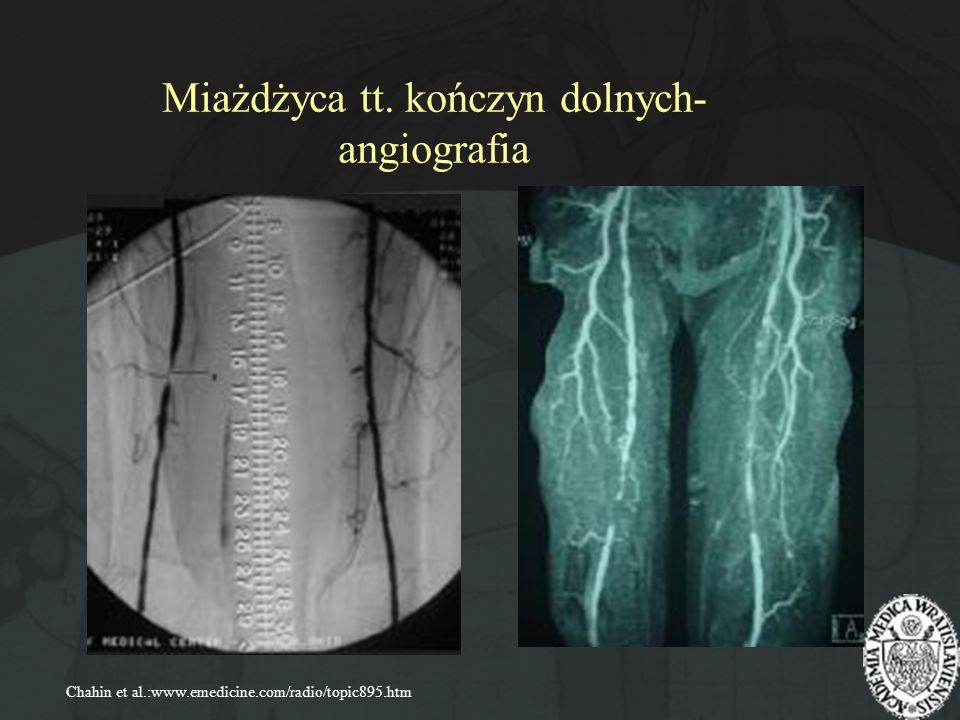 Miażdżyca tt. kończyn dolnych- angiografia