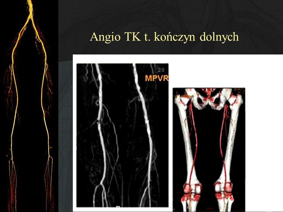 Angio TK t. kończyn dolnych