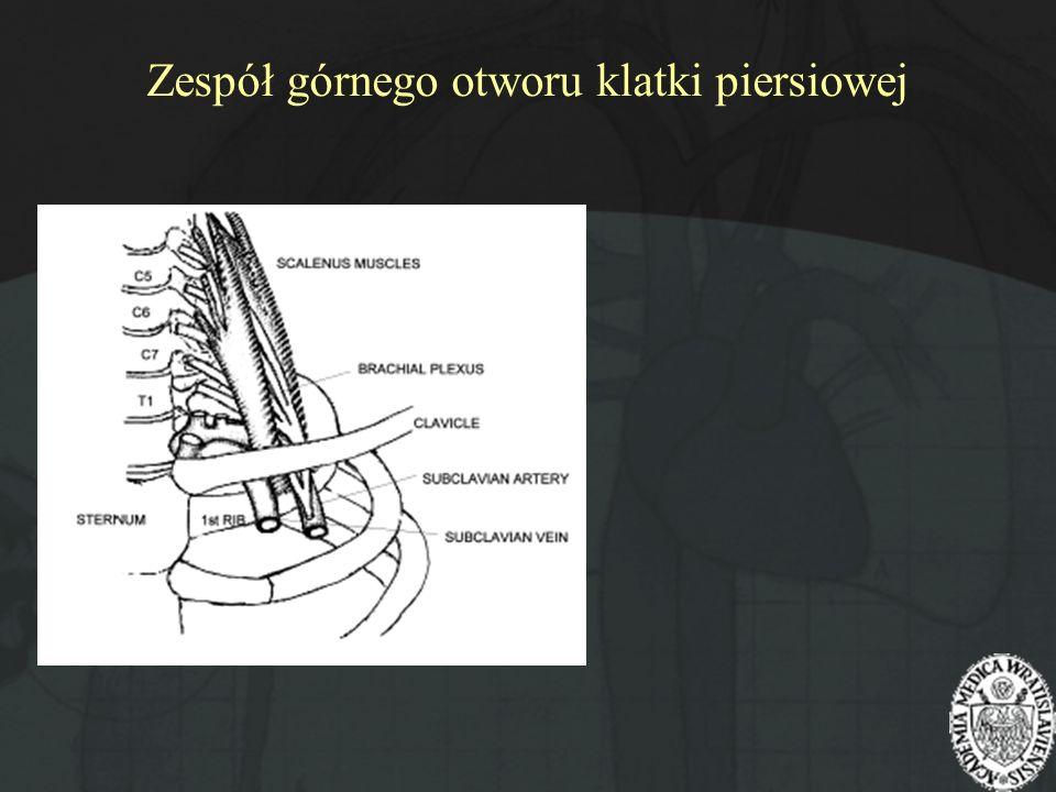 Zespół górnego otworu klatki piersiowej