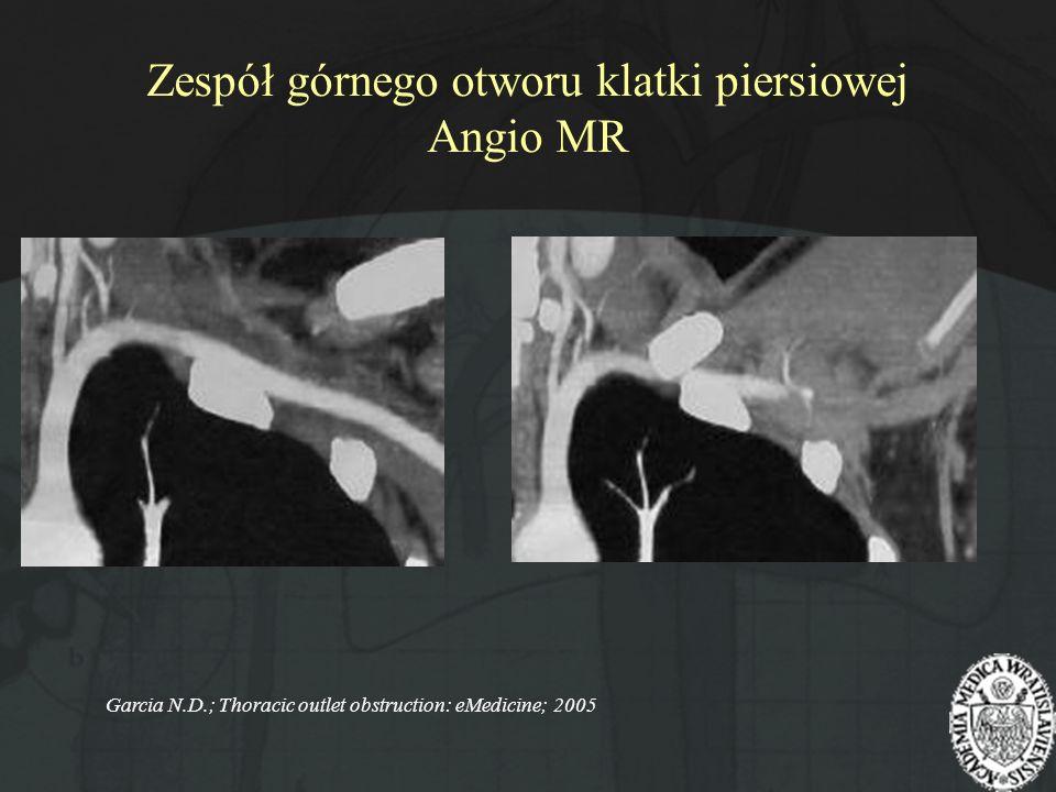 Zespół górnego otworu klatki piersiowej Angio MR
