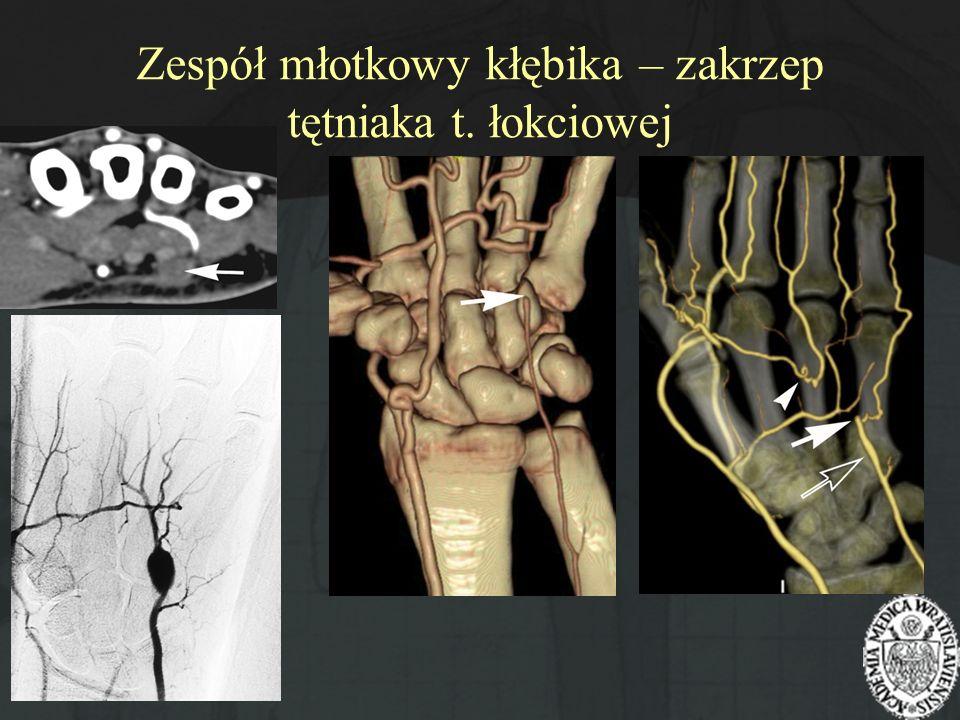 Zespół młotkowy kłębika – zakrzep tętniaka t. łokciowej