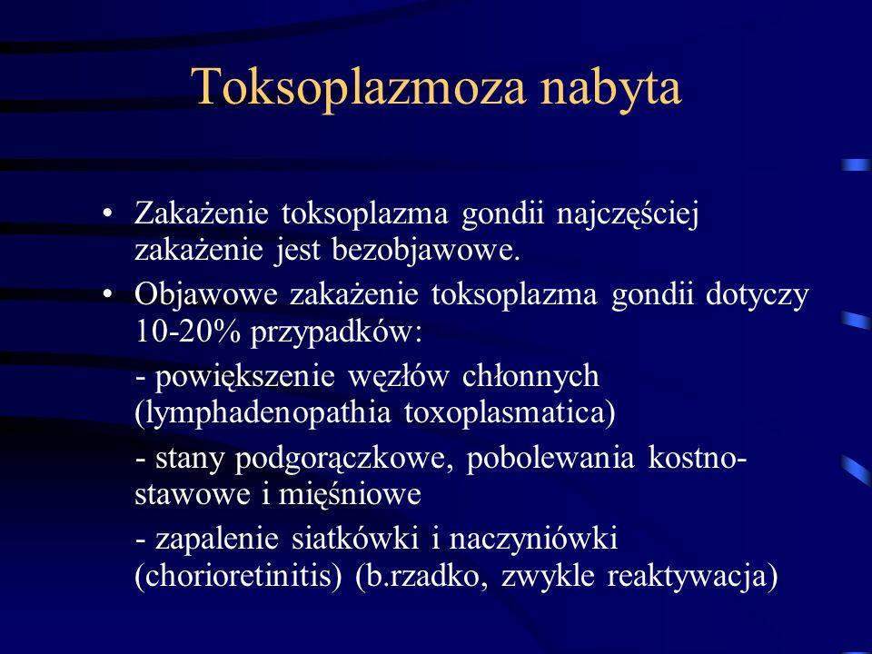 Toksoplazmoza nabyta Zakażenie toksoplazma gondii najczęściej zakażenie jest bezobjawowe.
