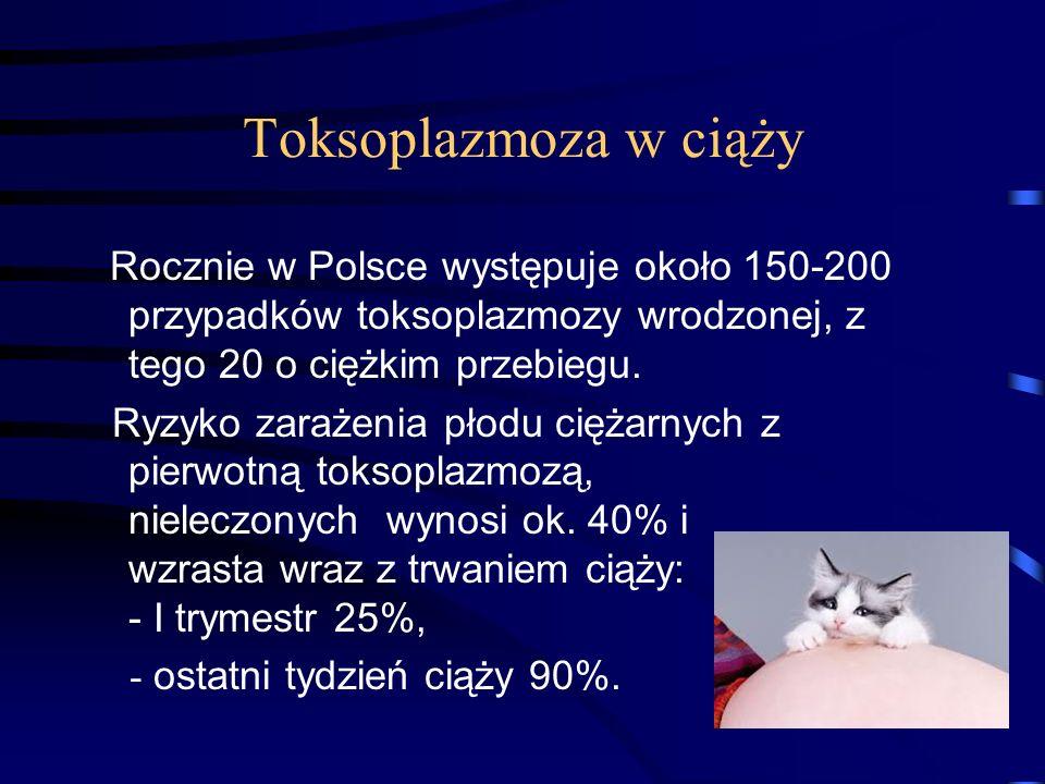 Toksoplazmoza w ciąży Rocznie w Polsce występuje około 150-200 przypadków toksoplazmozy wrodzonej, z tego 20 o ciężkim przebiegu.