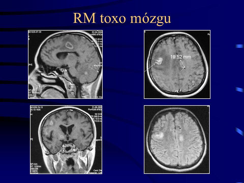 RM toxo mózgu
