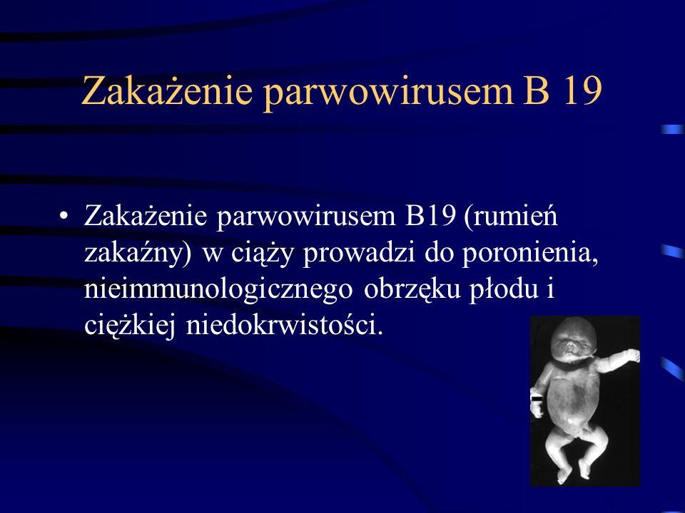 Zakażenie parwowirusem B 19