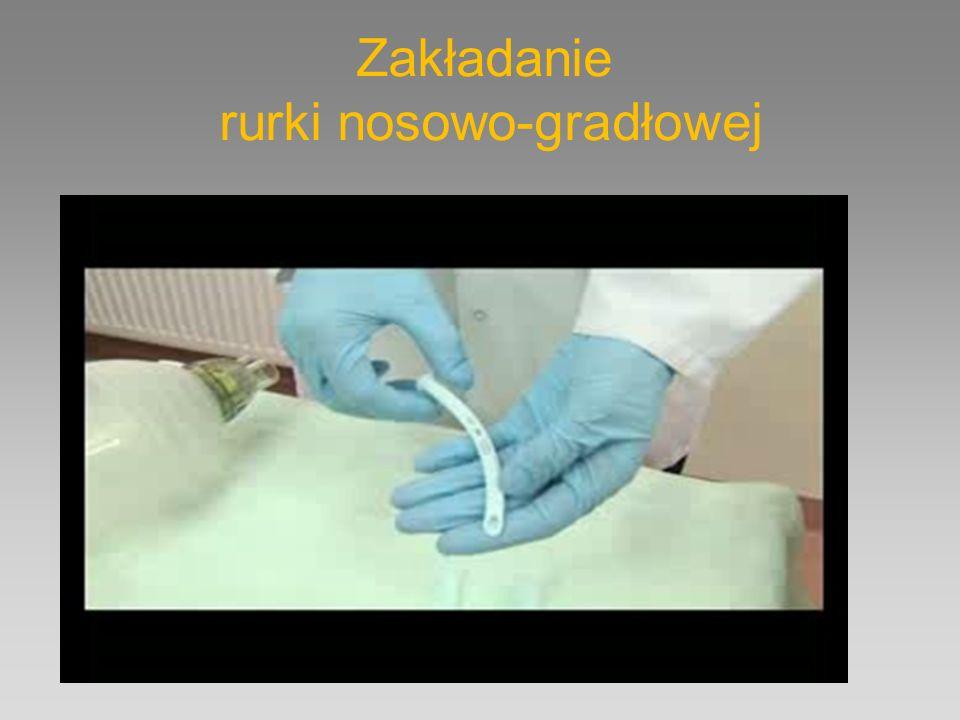 Zakładanie rurki nosowo-gradłowej