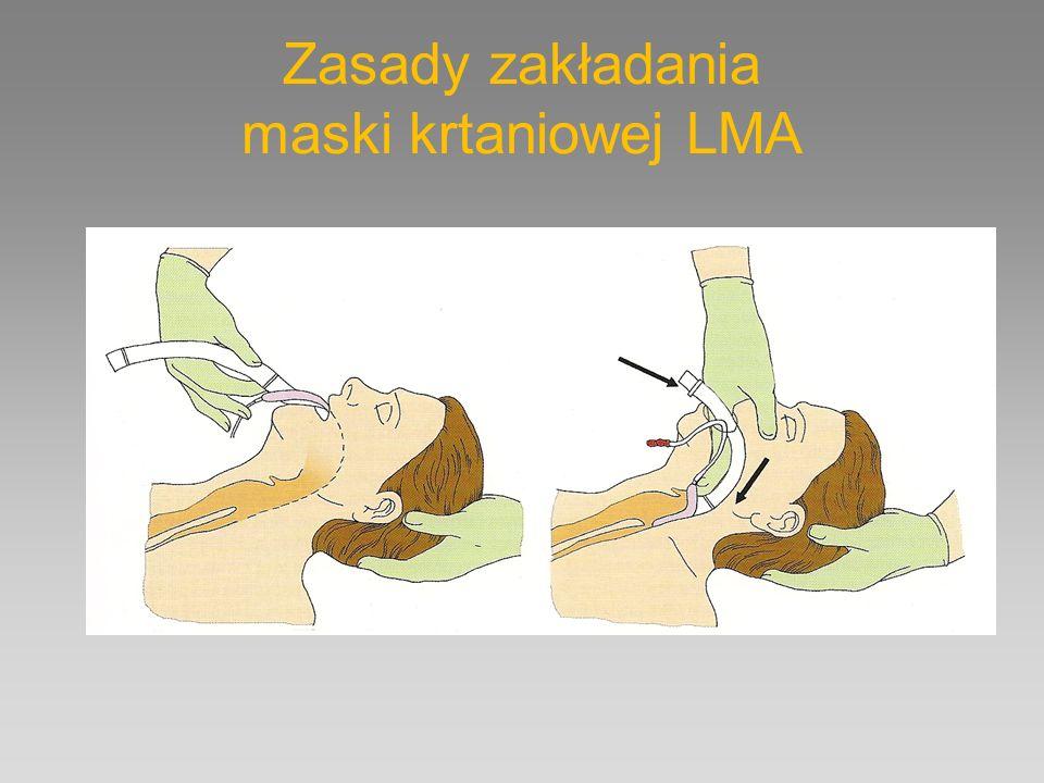 Zasady zakładania maski krtaniowej LMA