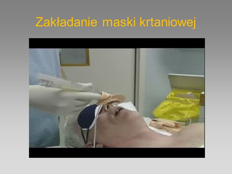 Zakładanie maski krtaniowej