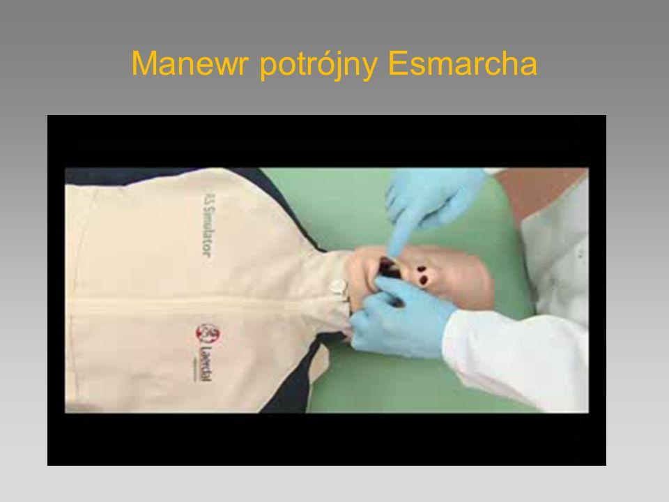 Manewr potrójny Esmarcha