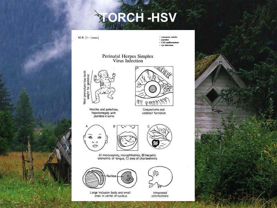 TORCH -HSV