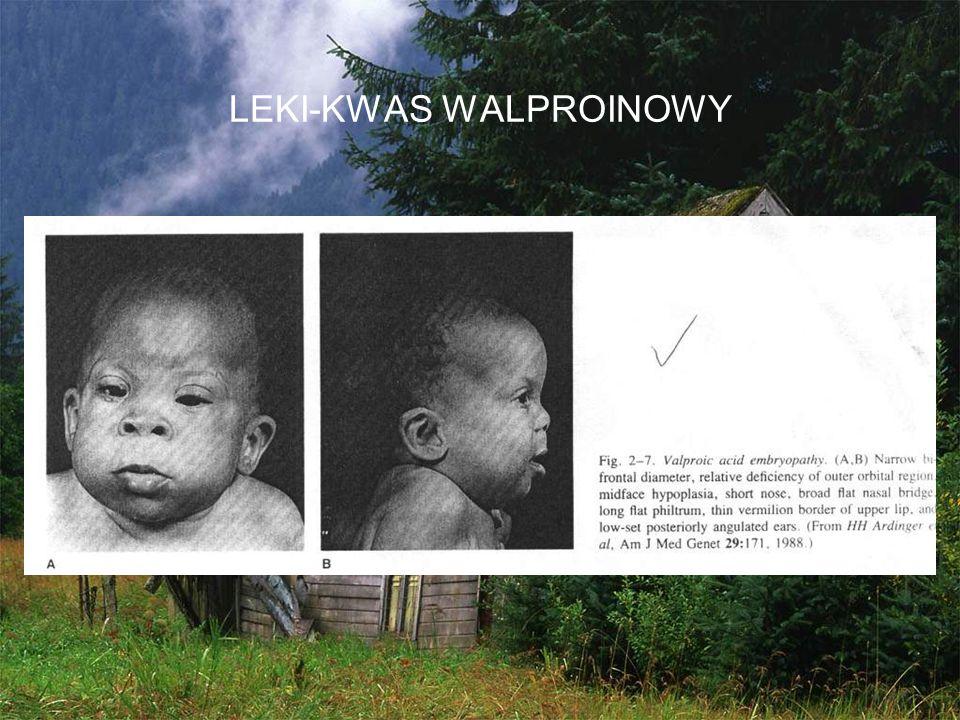 LEKI-KWAS WALPROINOWY