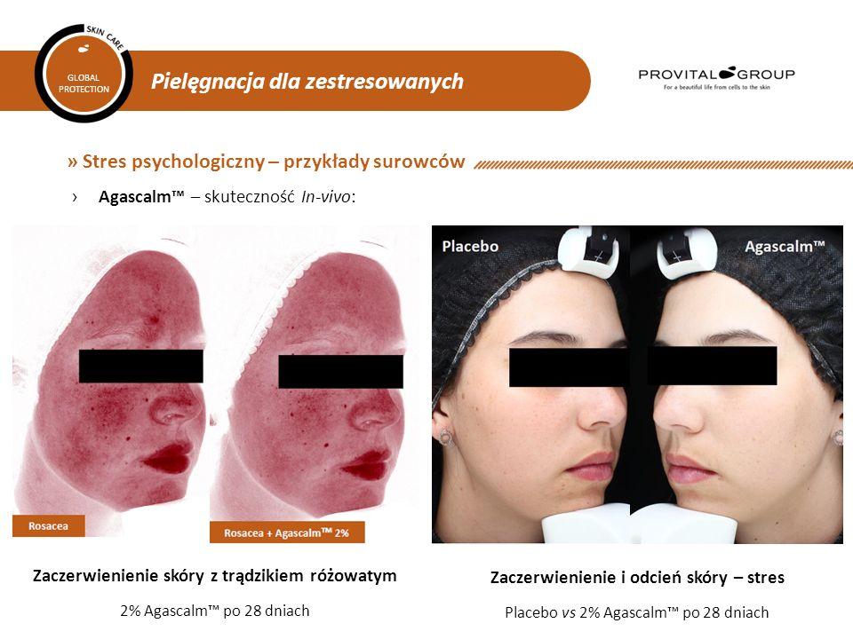 » Stres psychologiczny – przykłady surowców