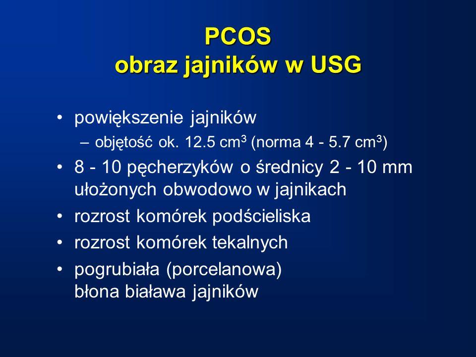 PCOS obraz jajników w USG