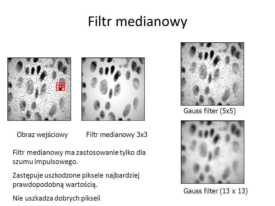 Filtr medianowy Gauss filter (5x5) Obraz wejściowy. Filtr medianowy 3x3. Filtr medianowy ma zastosowanie tylko dla szumu impulsowego.