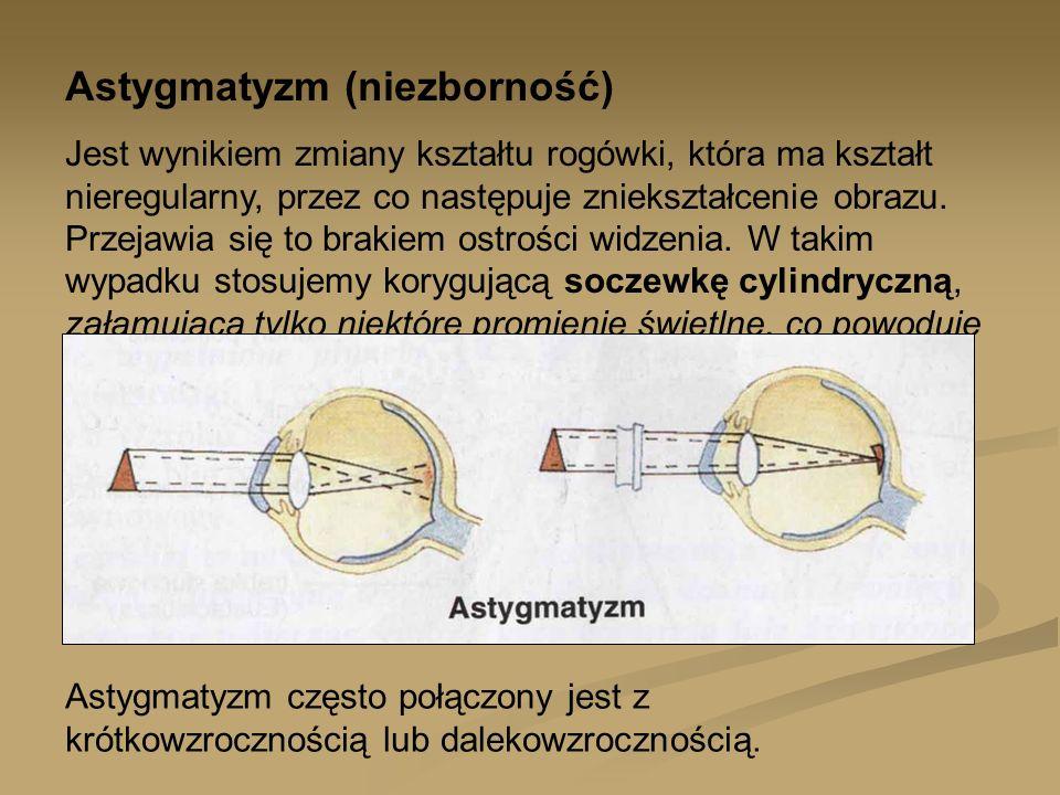 Astygmatyzm (niezborność)